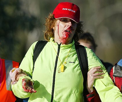 Duck protestor Julia Symons shot in the face on the first day of the duck hunting season in Victoria.